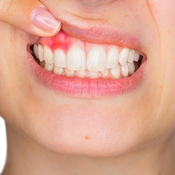 Closeup of smile with gum disease