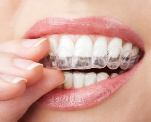 woman puting in alignment tray from Invisalign in lisle
