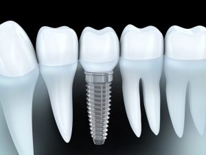 Dental implants in Lisle look and act like real teeth, but their success depends on after care. Lisle dentist, Dr. Frank Marchese, explains how it's done.