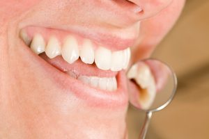 The family dentist in Lisle provides restorative care.