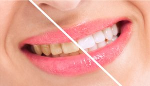 bleaching teeth whitening