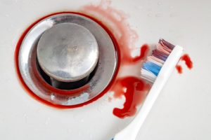 blood mixed with toothpaste on a toothbrush
